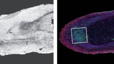Photo of Autopsitë zbulojnë dëmin që mund të shkaktojë Covid-19 në trurin e njeriut