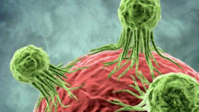 Photo of A janë ngjitës tumoret? Ja rastet e rralla që kanë habitur edhe shkencëtarët